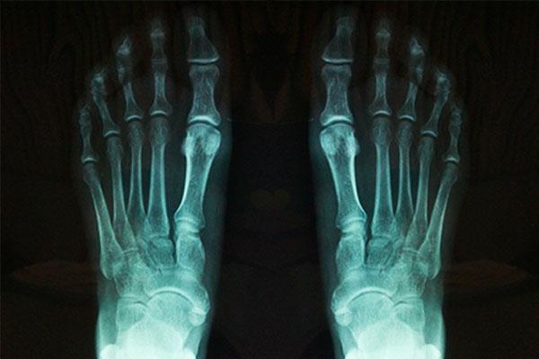 Estudios radiológicos
