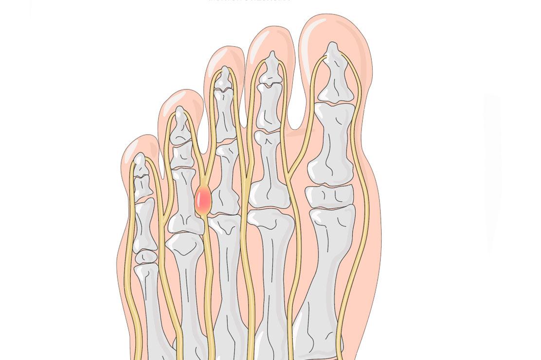 Tratamiento del Neuroma de Morton