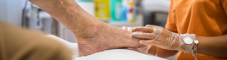 Tratamiento del pie diabético Madrid